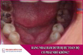 răng nhai hàm dưới bị hư toàn bộ có phải nhổ không