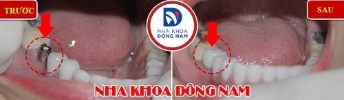 răng nhai hàm dưới bị hư toàn bộ có phải nhổ không 2