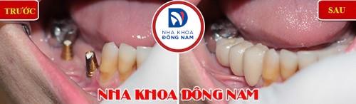 răng nhai hàm dưới bị hư toàn bộ có phải nhổ không 3