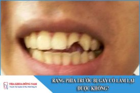 răng phía trước bị gãy có làm lại được không
