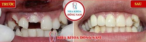 bọc sứ cho răng phía trước bị gãy