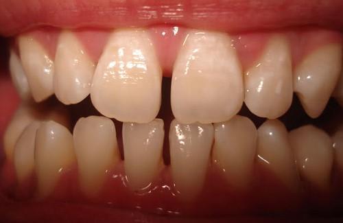 răng thưa 2 hàm có bọc sứ được không 1