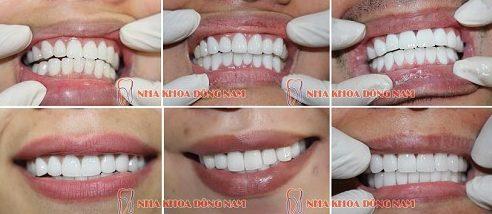 răng thưa 2 hàm có bọc sứ được không 10