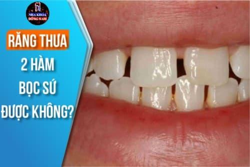 răng thưa 2 hàm có bọc sứ được không