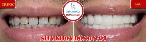răng thưa 2 hàm có bọc sứ được không 3