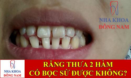 răng thưa 2 hàm có bọc sứ được không -1