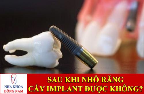 sau khi nhổ răng có cấy ghép implant được không -1