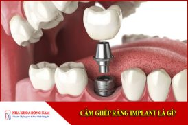 Cắm Ghép Răng Implant Là Gì?