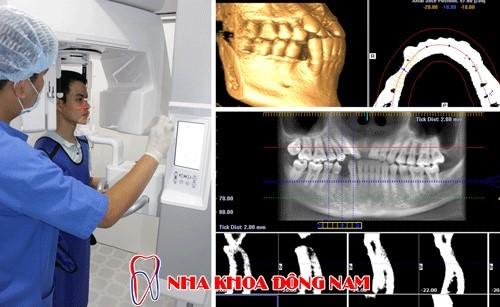 chụp phim CT 3D kiểm tra tình trạng răng và xương hàm