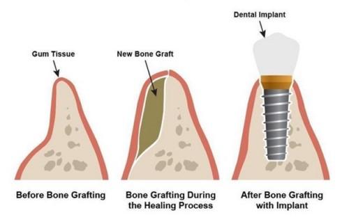 ưu điểm của răng implant