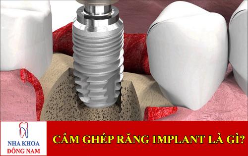 sự thật cắm ghép răng implant là gì -1