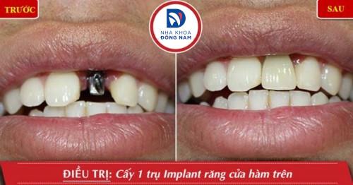 sự thật cắm ghép răng implant là gì