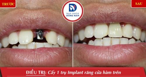 cắm ghép implant răng cửa