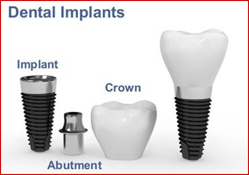 cắm ghép răng implant là gì -2