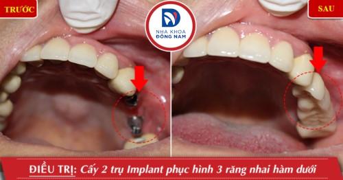cắm 2 trụ implant cấm