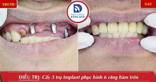 cấy 3 trụ implant răng cửa