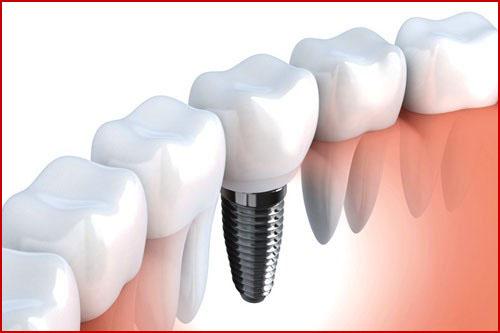 sự thật cắm ghép răng implant là gì -3