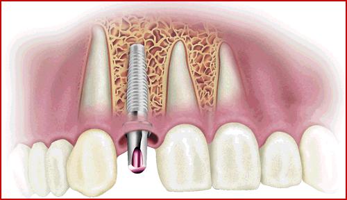 cắm ghép răng implant quá trình tích hợp xương hàm