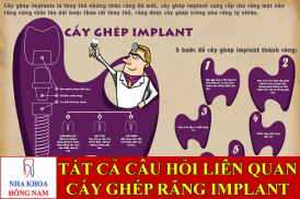 tất cả câu hỏi về cấy ghép răng implant -1
