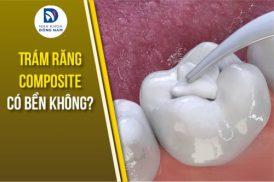 trám răng composite có bền không