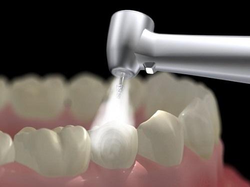 trám răng composite có bền không -3