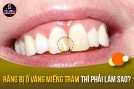 bị ố vàng miếng trám răng thì phải làm sao