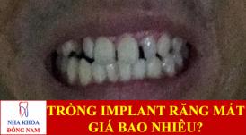 trồng implant cho răng bị mất -1