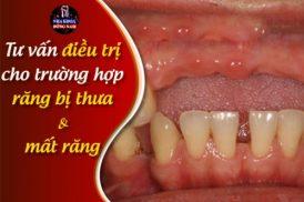Trồng Implant Cho Răng Bị Mất Và Bọc Răng Sứ Giá Bao Nhiêu