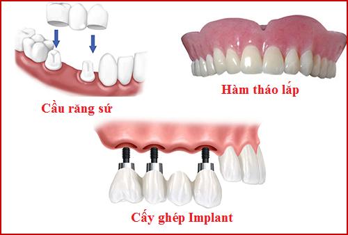 sự thật cắm ghép răng implant là gì -2