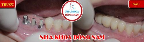 Trồng răng giả cố định bằng phương pháp cấy ghép implant 10