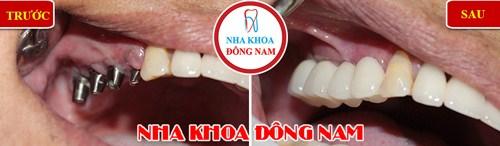 Trồng răng giả cố định bằng phương pháp cấy ghép implant 11