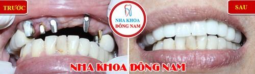Trồng răng giả cố định bằng phương pháp cấy ghép implant 1