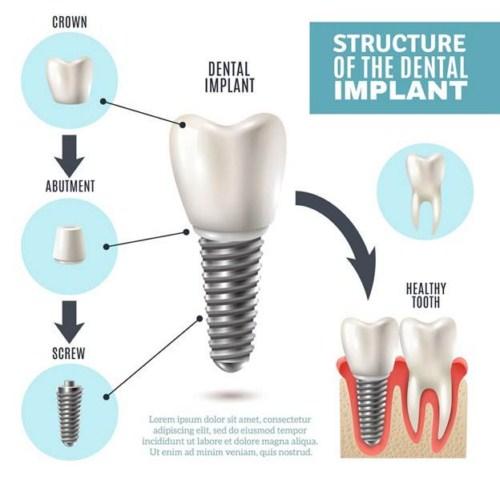 Trồng răng giả cố định bằng phương pháp cấy ghép implant 2
