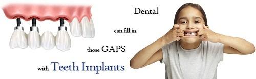 Trồng răng giả cố định bằng phương pháp cấy ghép implant 5