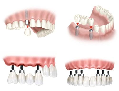 Trồng răng giả cố định bằng phương pháp cấy ghép implant 8