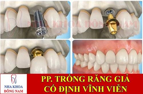 Trồng răng giả cố định bằng phương pháp cấy ghép implant