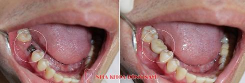 trồng răng hàm bao nhiêu tiền -6