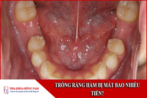 trồng răng hàm bị mất bao nhiêu tiền