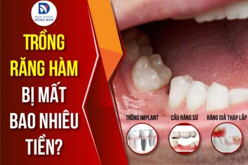Trồng răng hàm bị mất bao nhiêu tiền?