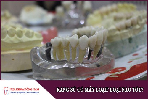 răng sứ có mấy loại?