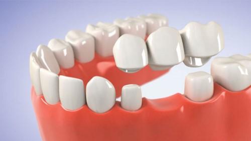 trồng răng sứ bắc cầu