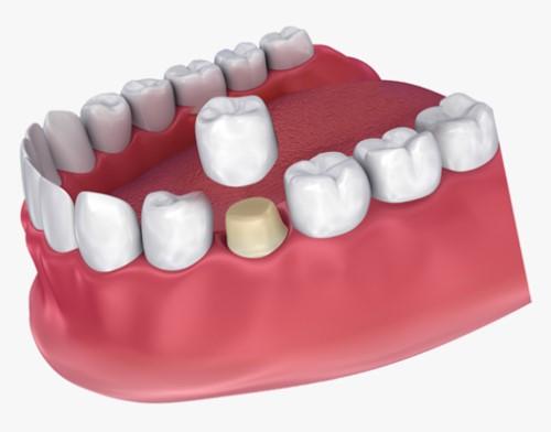 trồng răng sứ có mấy loại
