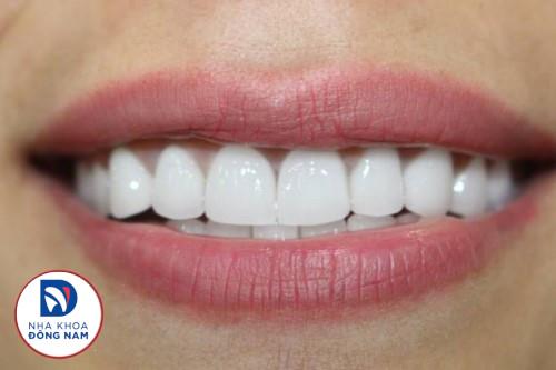 Khách hàng bọc răng sứ tại nha khoa đông nam