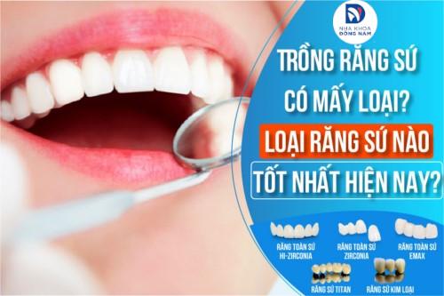 Trồng răng sứ có mấy loại? Loại nào tốt?