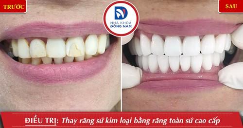Thay cầu răng kim loại bằng răng toàn sứ cao cấp