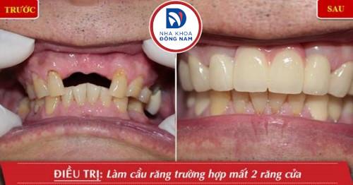 khách hàng trồng răng sứ thẩm mỹ tại nha khoa Đông Nam