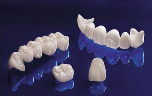 Kết quả hình ảnh cho răng sứ