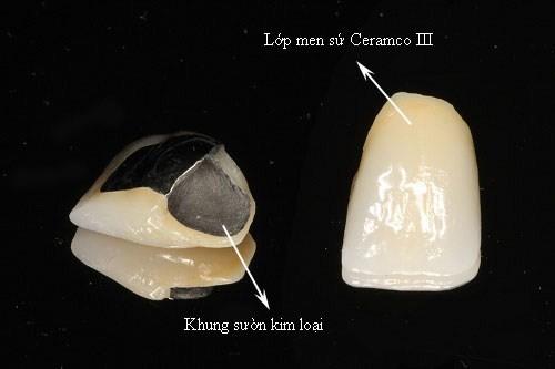cấu tạo của sứ kim loại