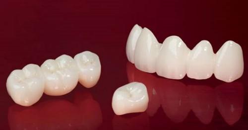 Cấu tạo của răng sứ emax