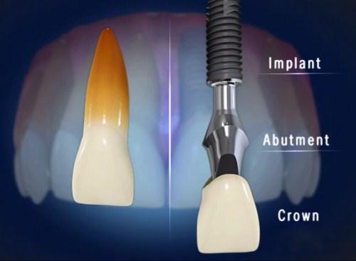 Cấy ghép răng Implant hoàn thành trong 1 tháng được không 1